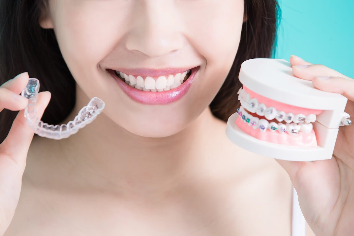 Invisalign Vs Braces: Which One is Superior?