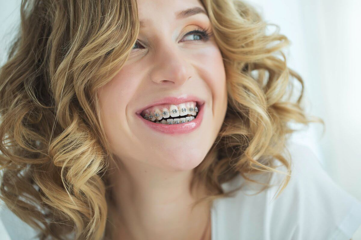 Fixing Your Smile: When To Get Braces