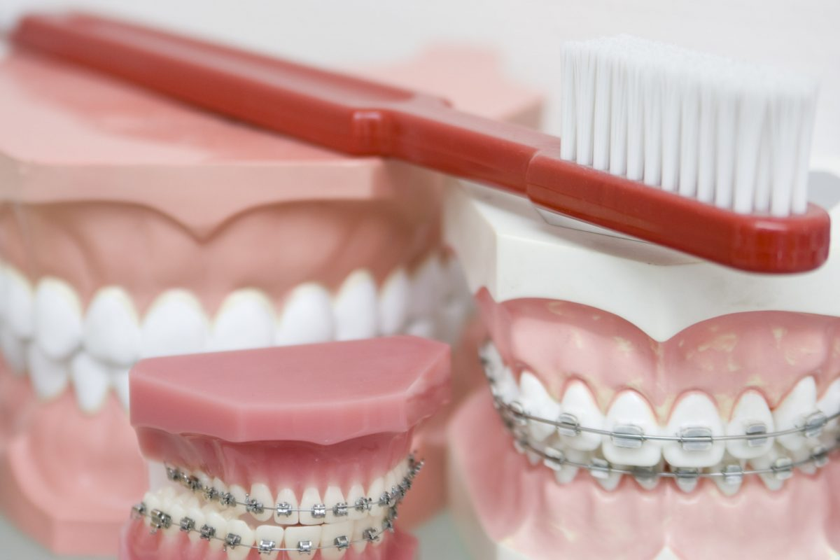 How To Pick The Best Type Of Braces For Your Teeth?