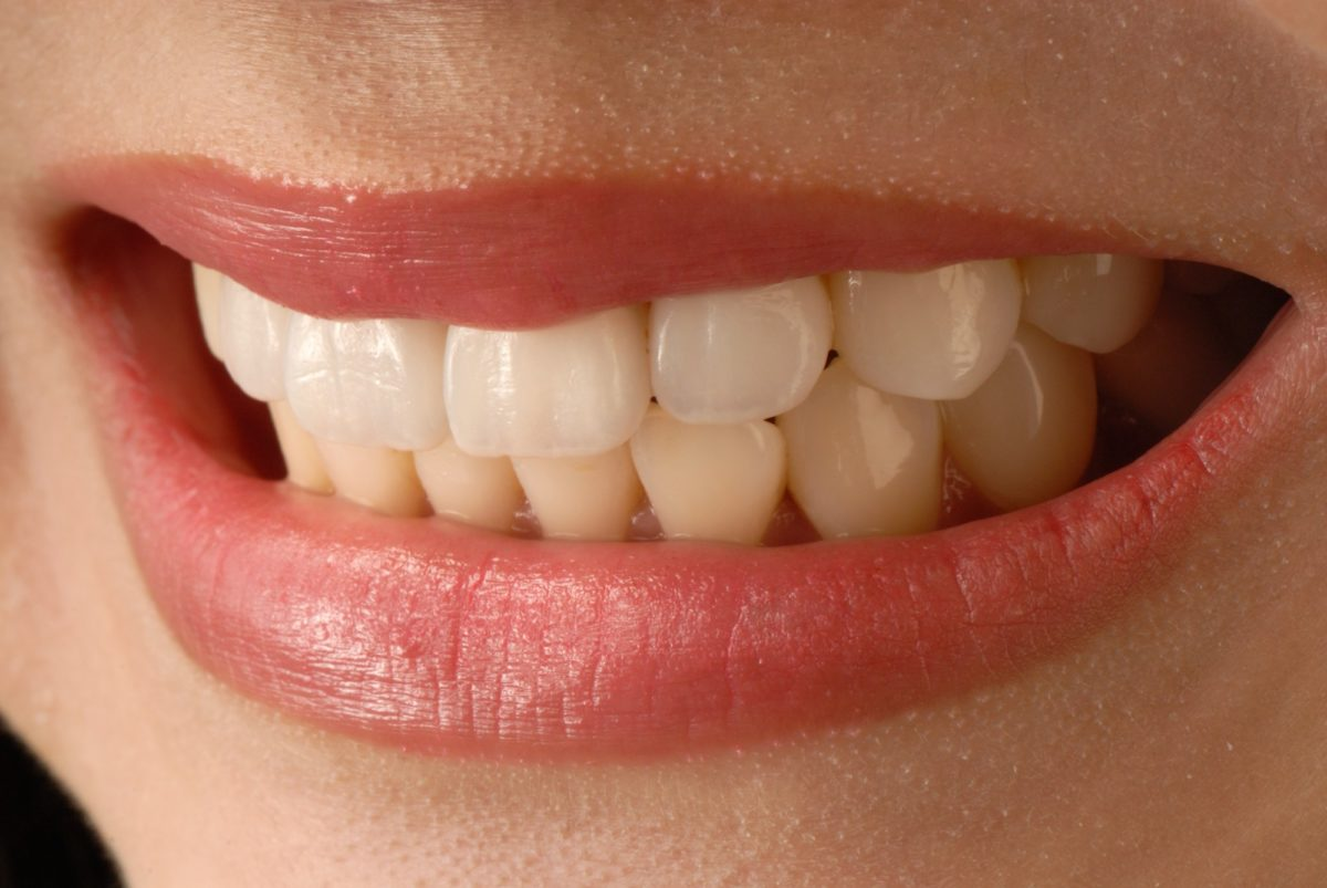 Smile Big: 10 Reasons to Get Veneers